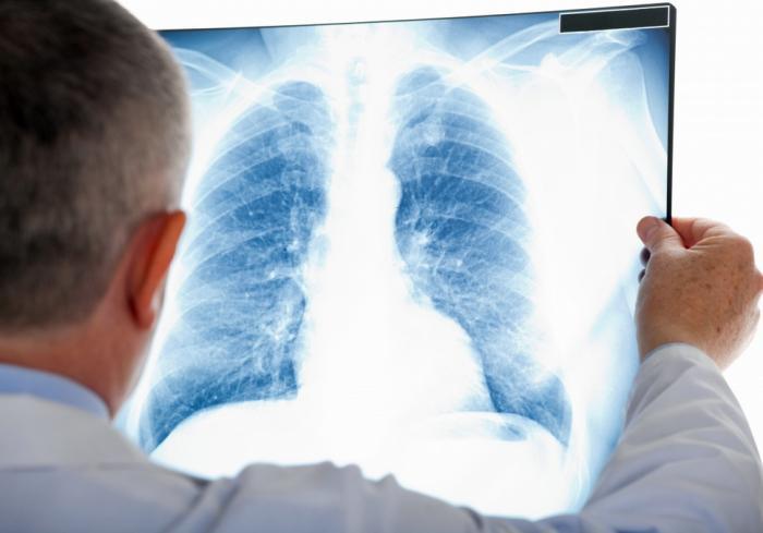 На Днепропетровщине уменьшилось количество пациентов с пневмонией