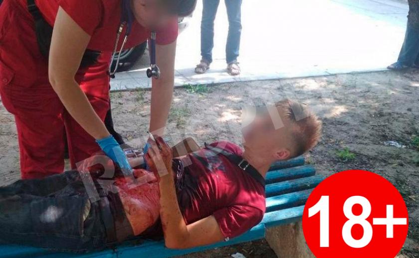 В лесополосе Днепра парень вспорол себе живот разбитой бутылкой 18+